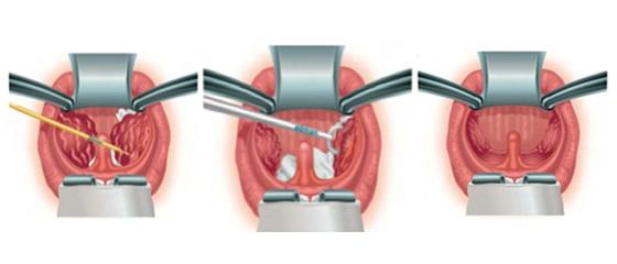 外耳道炎胆脂瘤病情很复杂,针对治疗要谨慎对待,那么外耳道炎胆脂瘤怎么治疗有效呢?郑州民生耳鼻喉医院医生介绍,外耳道胆脂瘤的疾病病因可能与外耳道皮肤受到各种病变的长期刺激(如耵聍塞、炎症、异物、真菌感染等)而产生慢性充血,致使局部皮肤生发层中的基底细胞生长活跃,角化上皮细胞脱落异常多,若其排除受阻,便堆积于外耳道内,形成团块。久之其中心腐败、分解、变性,产生胆固醇结晶。下面郑州民生医生来为大家介绍该病的治疗方法。    外耳道炎胆脂瘤的治疗方法有哪些?