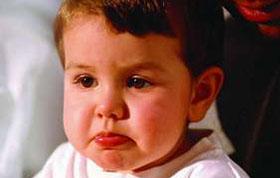 得了鼻窦囊肿该怎么办?